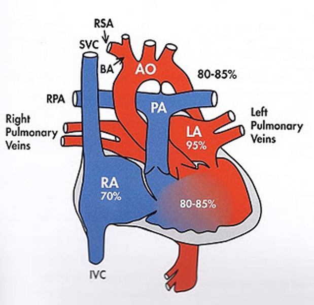 Single Ventricle Heart